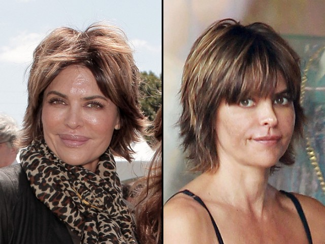 Lisa Rinna went under the knife again in August to have her infamous trout pout reduced